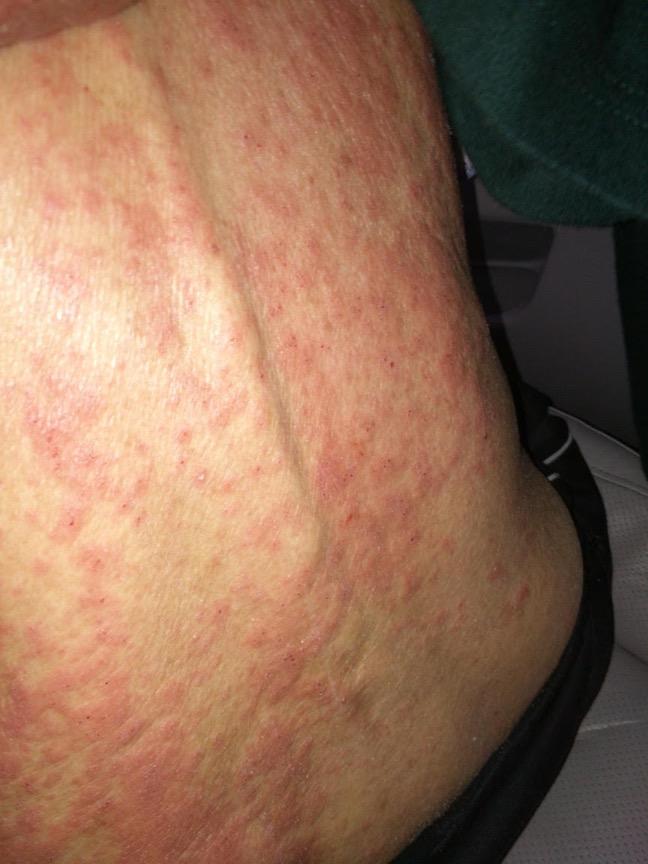 Chinese-Herbal-Medicine-Treat-Eczema-Before